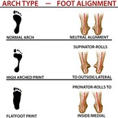 High Arch Feet