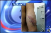 Santiago Hernandez Claims Police Brutality In NYPD Beating Caught On Video