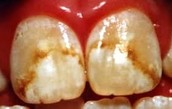 Brown Stains on Fingers and Teeth