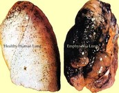A smokers lung versus a non smokers lung.