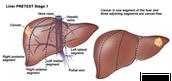 tumour in liver