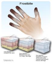 Frostbite Prevention Classes