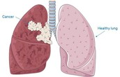 What lung cancer is.