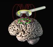 Trans-cranial magnetic stimulation treats postpartum depression