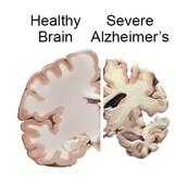 Effects of Alzheimer's Disease