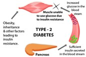 What is Type Two Diabetes?