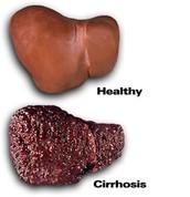 An Alcoholics' Liver