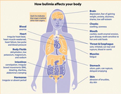 Effects Bulimia can have on the body