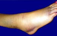 A ankle sprain