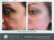 NeriumAD Age-Defying Night Treatment