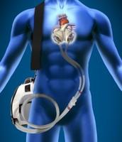 Artifical Organs