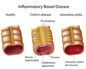 Difference of Crohn's Disease from other IBD.