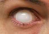 Blindness can be caused by fiber optics