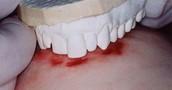 Bite marks on a body with a dental impression