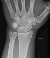 When i broke my wrist