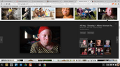 a woman with albinism