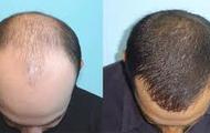 John Janota- Hair loss Patient