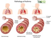Ten Facts about Childhood Asthma