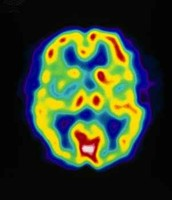 PET scan of the brain