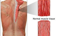 This is called a strained muscle.