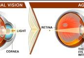Normal Eye vs. Aging Eye