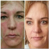 Big results for discolored skin issues