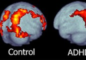 Normal Brain v.s. ADHD Brain
