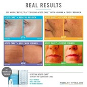 Acute Care for Expression Lines