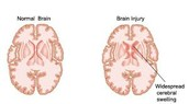 Normal vs. Injured Brain