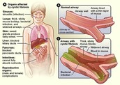 Causes of Cystic Fibrosis and complications