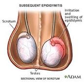 Epidydymitis