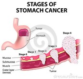 The stages of stomach cancer