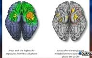 Cell phones causing brain tumors?