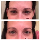 Ever Pure Results Regimen