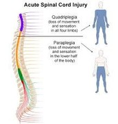 Chart of spinal cord injury