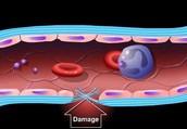 מהי קרישת דם?