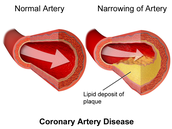 What is Coronary Artery Disease