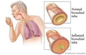Bronchi Infected With Bronchitis