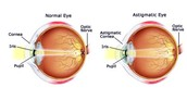 Normal and Astigmatic Eye