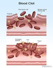 How does blood clot?