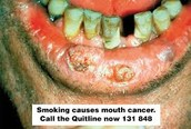 the 4 physical consequences of smoking