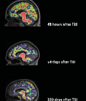TBI EFFECTING THE BRAIN TIMELINE
