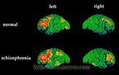 Abnormal Brain Structure