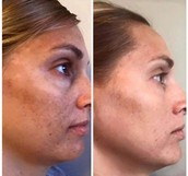 EVER helps with sun damage & dark spots