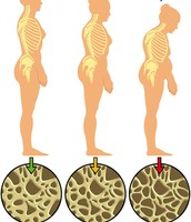 Osteoporosis over time