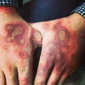 Ringworm on The Hands
