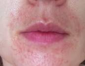infecciones en la piel