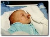baby with trisomy 3-