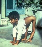 polio disease symptoms
