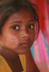 History of leprosy